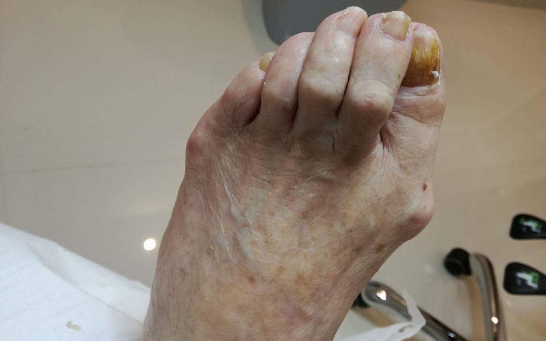 Szponowatość paznokci – leczenie