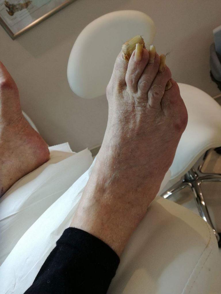 szpontowatość paznokci leczenie warszawa