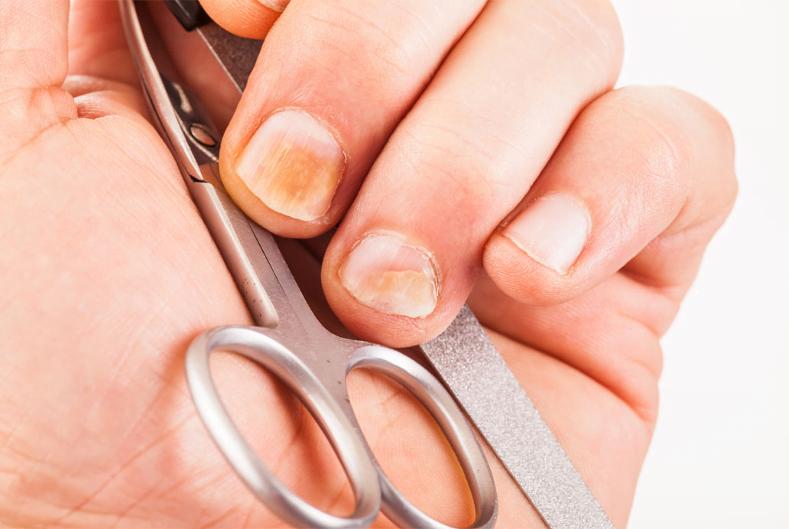 Wrastające paznokcie – leczenie nieinwazyjne Warszawa