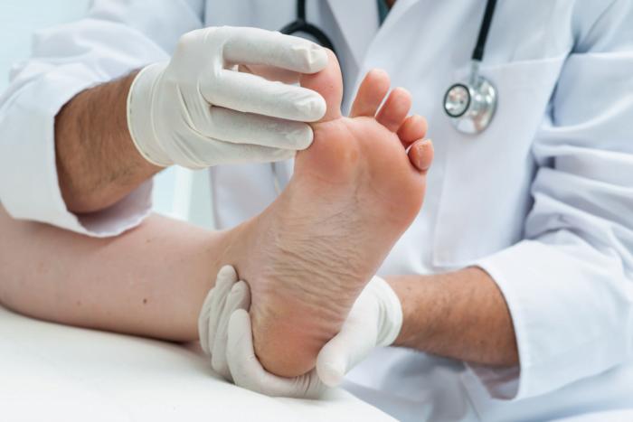 Grzybica paznokci u stóp – jak wyleczyć?