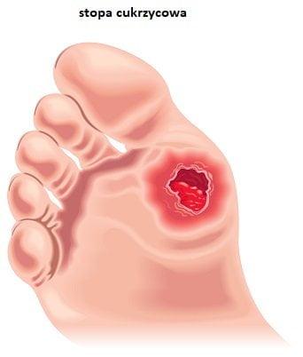 rana na stopie cukrzycowej