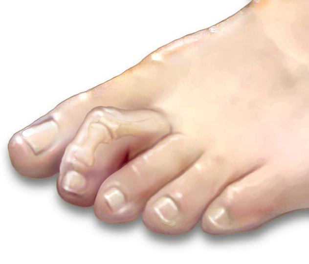 Specjalistyczne leczenie odcisków na palcach młotkowatych